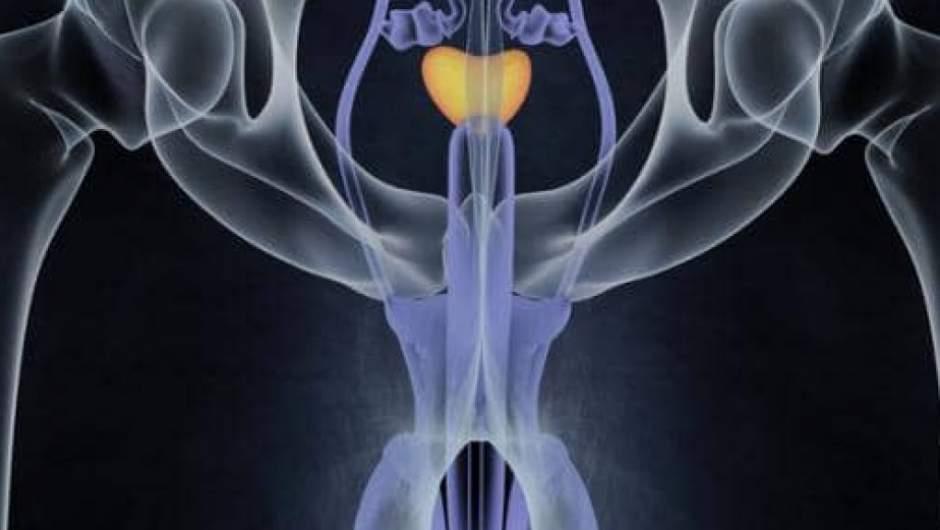 examen de próstata cómo y dónde hacerlo
